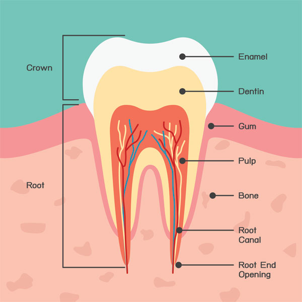 Dental Cavities